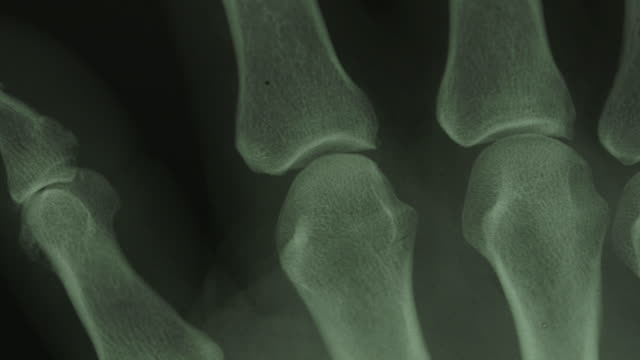 vídeos de stock e filmes b-roll de close pan across an x-ray of human finger bones. - raio x
