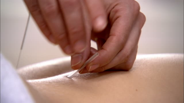 close up acupuncture needles being inserted into woman's back - acupuncture stock videos and b-roll footage