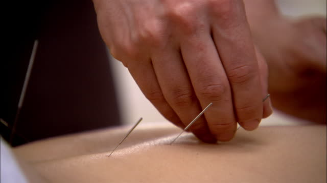 stockvideo's en b-roll-footage met close up acupuncture needles being inserted into woman's back - new age