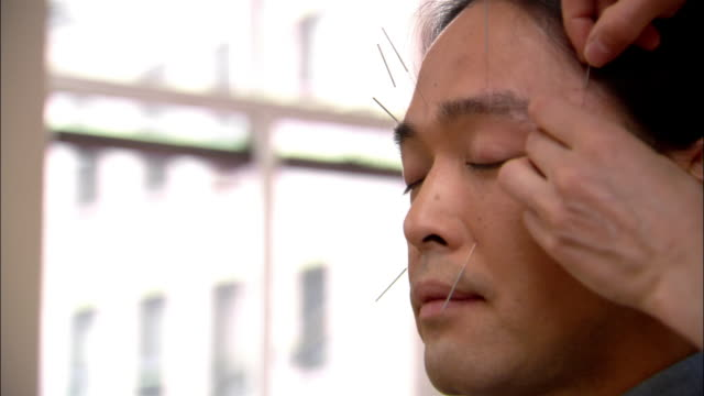 stockvideo's en b-roll-footage met close up acupuncture needles being insterted into man's brow / needles sticking out of his upper lip - new age