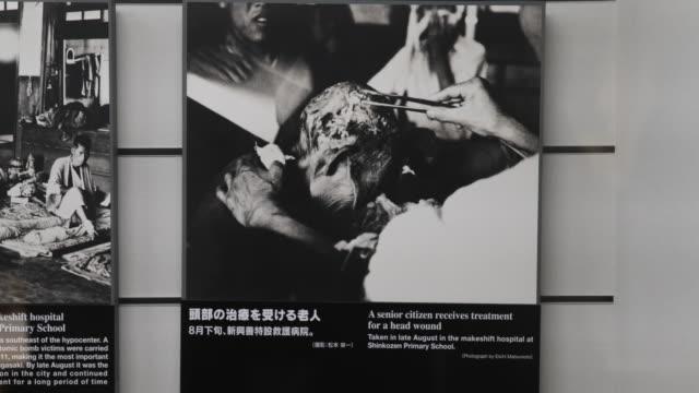 vidéos et rushes de close up, at the atomic bomb museum nagasaki, a showcase with several photographs displaying injured citizens. - arme de destruction massive