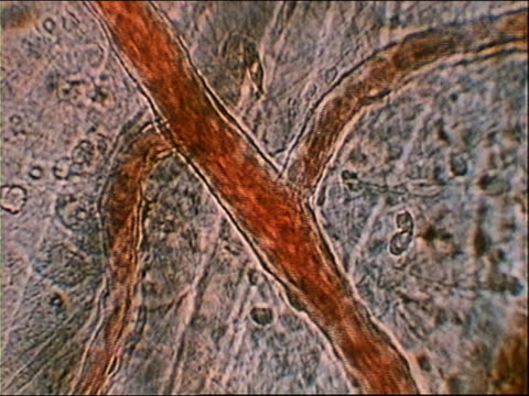 1980 MICROSCOPIC close up blood traveling through veins