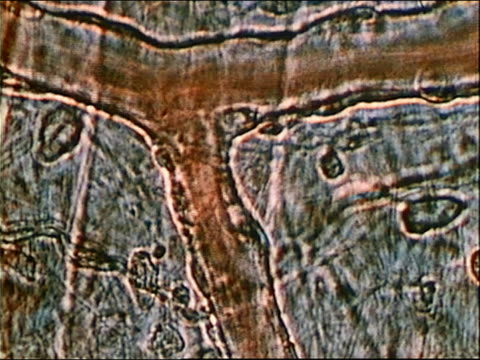 1980 microscopic close up blood traveling through veins - vena video stock e b–roll