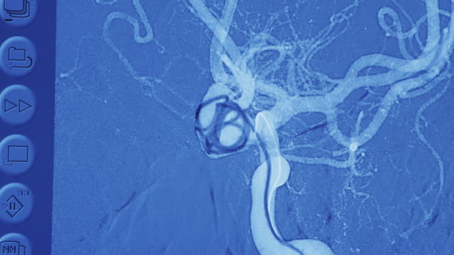 Close up Computer diagnostic image illustrating catheterization of brain aneurysm.