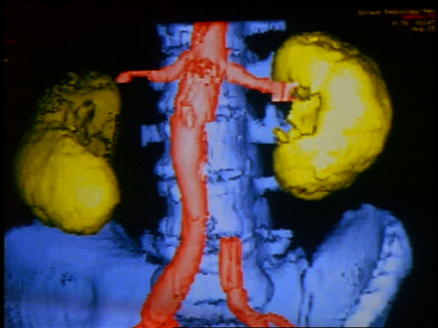 stockvideo's en b-roll-footage met close up computer display of cgi model of spine, hip bones + kidneys - human kidney