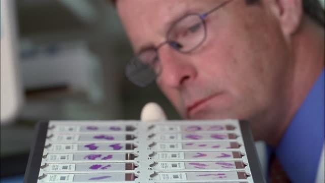 vídeos de stock, filmes e b-roll de close up doctor inspecting tray of stained slides - teste de coloração