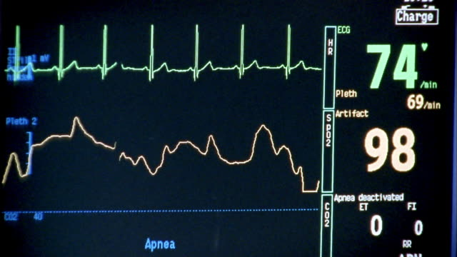 close up ecg waveforms on monitor display in hospital - pulse trace stock videos & royalty-free footage
