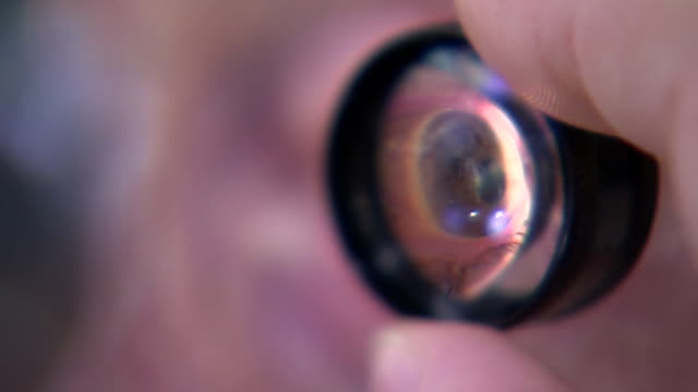 close up eye ball with magnifier over it as eye is examined by opthamologist at oxford eye hospital - scrutiny stock videos & royalty-free footage