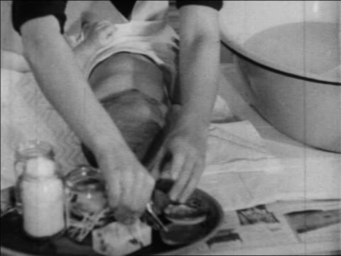 b/w 1934 close up hands of woman treating baby's ears with medicine / newsreel - anno 1934 video stock e b–roll