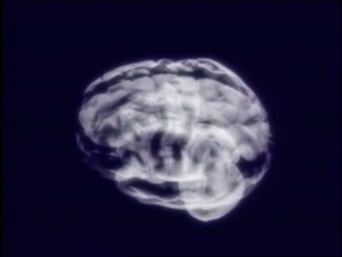 CGI close up human brain x-ray rotating with black background