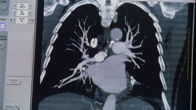 vídeos de stock e filmes b-roll de close up image on monitor changing as ct scan of heart and lungs is performed - lung