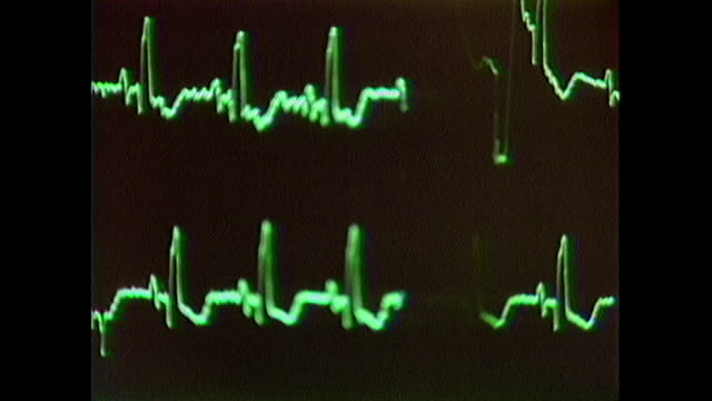 vídeos y material grabado en eventos de stock de close up of 1980s heart monitor, monitoring a patient's heart activity. - healthcare and medicine or illness or food and drink or fitness or exercise or wellbeing
