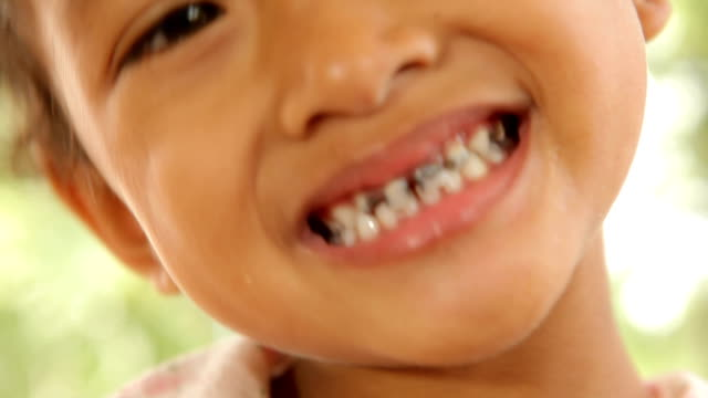 Close up of asian child caries