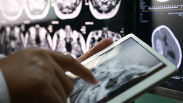 Close up of Doctor Analysis skull brain X-ray scan on digital tablet, Healthcare And Medicine Concept