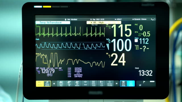 close up of heart monitor in operating room. ecg monitor showing heart beat rate of patient background - operating stock videos & royalty-free footage