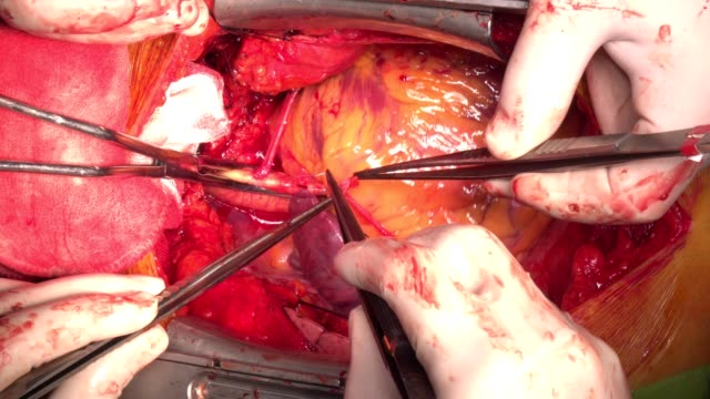 stockvideo's en b-roll-footage met close-up open hartchirurgie - cardiovasculaire training