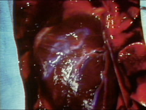 1972 close up pan open chest cavity during surgery / heart beating / speeding up