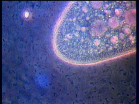1988 MICROSCOPIC close up paramecium with blue background