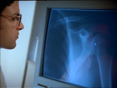close up rear view of man with eyeglasses looking at computer with X-rays on it