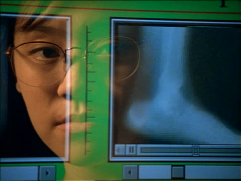 close up reflection of asian woman with eyeglasses in computer screen looking at x-rays - 女子大生点の映像素材/bロール