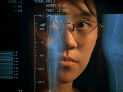 close up reflection of Asian woman with eyeglasses in computer screen looking at X-rays