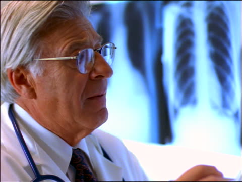 close up senior male doctor with eyeglasses looking at x-rays + writing notes