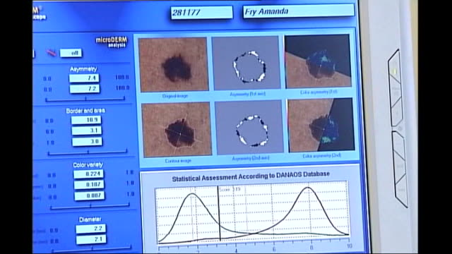 close up shots computer screen displaying photographic images of moles and blisters on skin technician holding scanner to woman's arm to photograph... - mole skin stock videos and b-roll footage