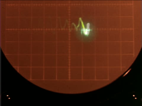 1960 close up squiggly line on heart monitor