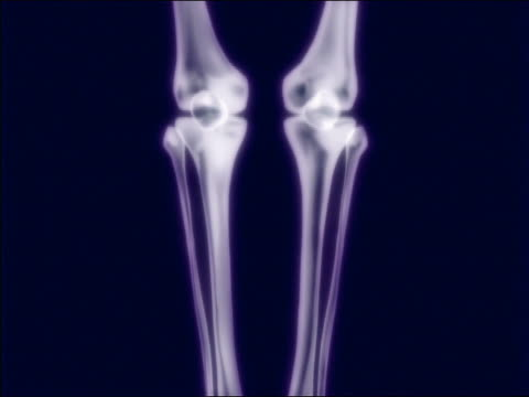 cgi close up tilt up 3-d x-ray image of human skeleton on blue background - anatomy stock videos & royalty-free footage