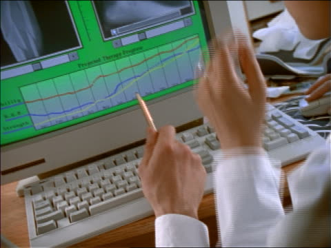 close up tilt up male + asian female doctors discussing x-rays on computer screen - 1990~1999年点の映像素材/bロール