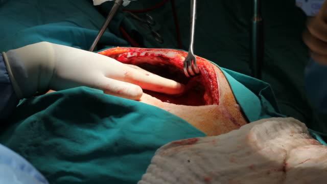 vídeos de stock, filmes e b-roll de close-up vista de abrir cirurgia cardíaca - cirurgião cardiovascular