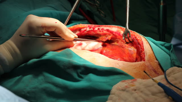 close up view of open heart surgery - coronary artery stock videos & royalty-free footage