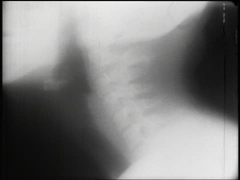 B/W 1953 close up x-ray of bones in human neck + head moving up + down