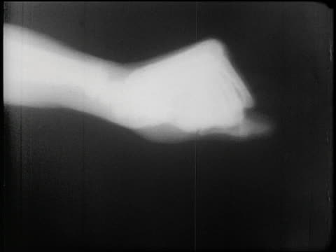 B/W 1953 close up x-ray of bones of hand + wrist flexing, making fist + reaching for bottle