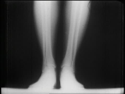 B/W 1953 close up x-ray of bones of legs + feet lifting up + down + flexing / man's foot flexing outdoors