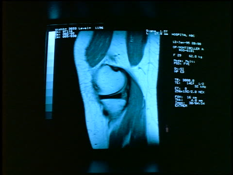 vídeos y material grabado en eventos de stock de close up xray of knee on monitor - imagen de rayos x