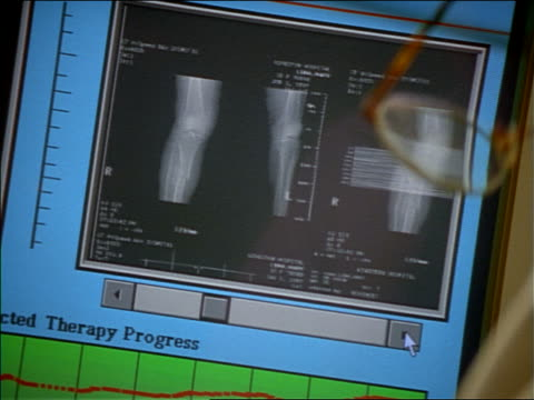 close up pan x-rays on computer screen / zoom out to male + asian female doctors talking in foreground - 科学写真技術点の映像素材/bロール