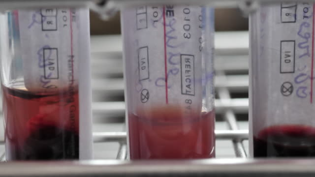 close-up blood samples in tubes - laboratory stock videos & royalty-free footage