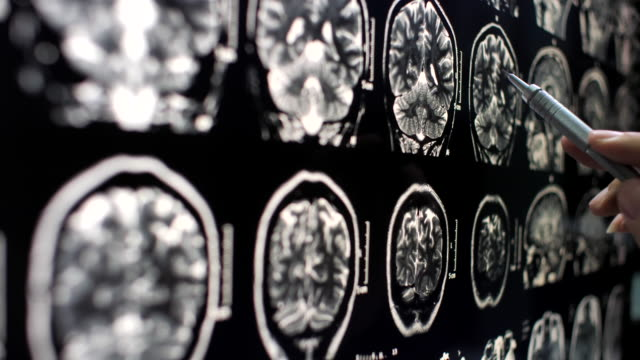 close-up doctor examining x-ray image - human brain stock videos & royalty-free footage