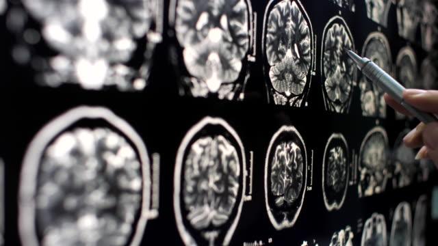 vidéos et rushes de médecin de plan rapproché examinant l'image de rayon x - carrying