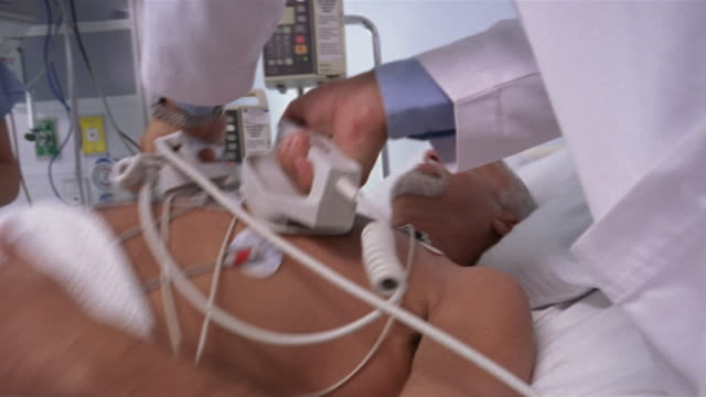 vídeos de stock, filmes e b-roll de close-up doctor using defibrillator on mature patient in intensive care unit/ panama city, panama  - heart attack