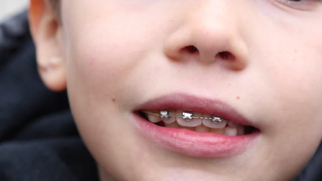 close-up of a child with a dental appliance on the street - brace stock videos and b-roll footage