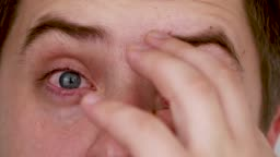 Close-up of blue male red eyes. Conjunctivitis, eye fatigue, improper eye hygiene - consequences in the form of red capillaries on the cornea of the eye.