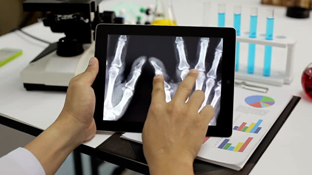 stockvideo's en b-roll-footage met close-up van onderzoeken x-ray image op een tablet pc - medische röntgenfoto