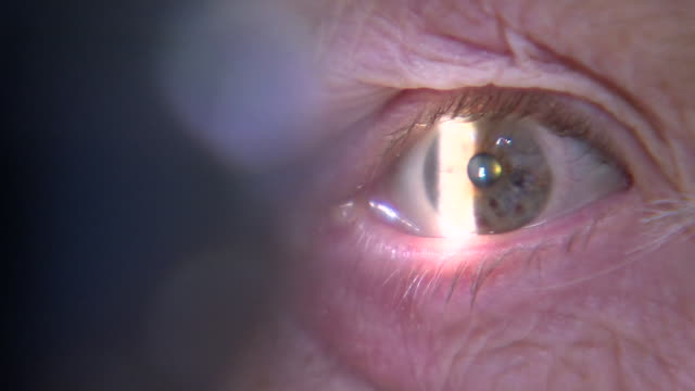 closeup of eye as it is examined by opthamologist at oxford eye hospital - close up stock videos & royalty-free footage