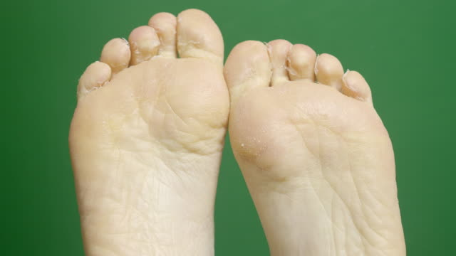 close-up of female foots during dermatology treatment spa procedures on the green chroma-key backdrop. - peel plant part stock videos and b-roll footage