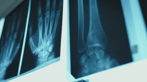 close-up of illuminated bone x-ray images - x ray image stock videos & royalty-free footage