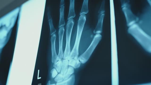 Close-up of illuminated hand x-ray image