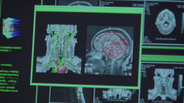 Close-up of MRI images of a human brain on a monitor.