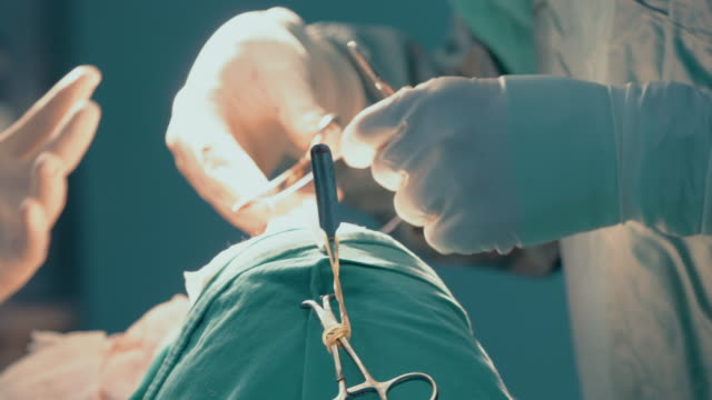 vídeos de stock e filmes b-roll de close-up of surgeon doing stitches during rhinoplasty surgery - tratamento a laser